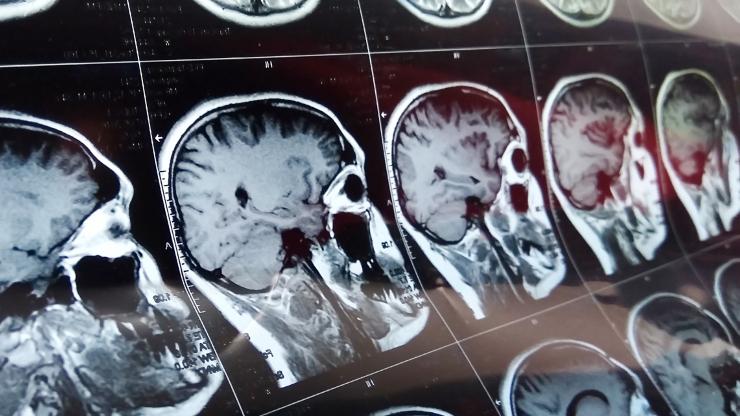 Scan of skulls